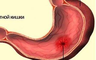 Язвенная болезнь двенадцатиперстной кишки