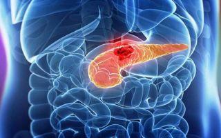 Об опухолях и кистах поджелудочной железы
