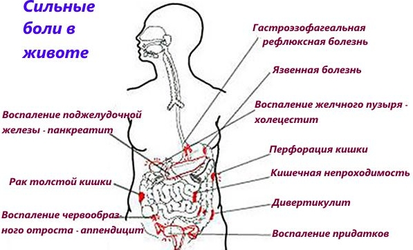 Что делать если постоянно болит желудок