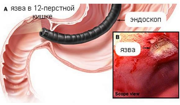 Диета при язве двенадцатиперстной кишки. Питание при язвенной болезни желудка и симптомы