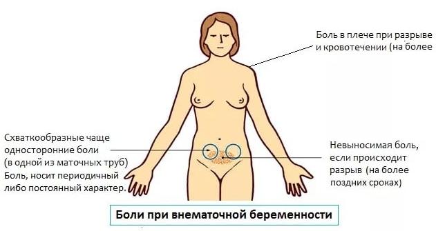 Болят половые губы при беременности