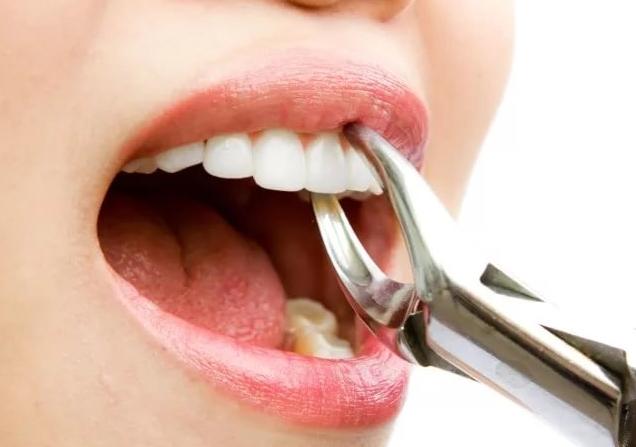 запах изо рта после молочных продуктов