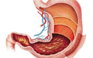 Чем лечить холецистит желчного пузыря