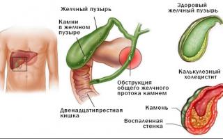 Острый холецистит симптомы и лечение
