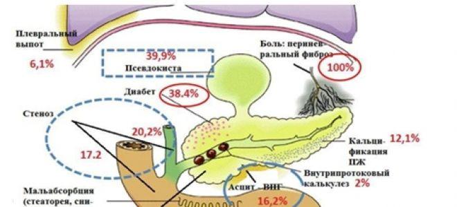 Панкреатит — последствия воспаления поджелудочной железы