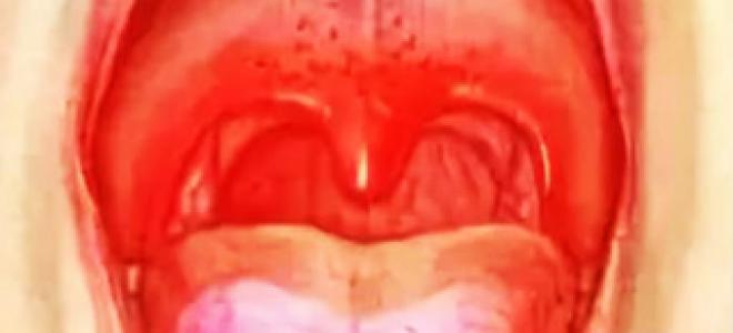 Болит горло и красные точки на небе