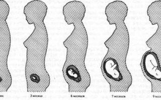 Не растет живот при беременности