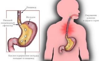 Эзофагит симптомы и лечение