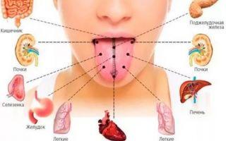 Металлический запах железа изо рта