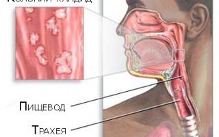 Как лечить эзофагит пищевода