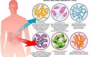 Схема лечения дисбактериоза кишечника у взрослых
