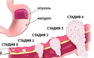 Рак желудка 3 стадия сколько живут