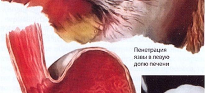 Язва желудка и кишечника