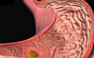Вас тошнит и есть отрыжка — болит желудок