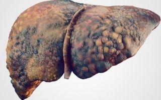 Что делать при циррозе печени