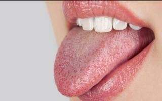 Сухость во рту и жжение языка