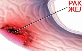 Первые признаки рака желудка