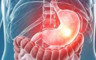 Расстройство желудка и его лечение