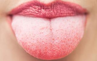 Болит горло и белый налет на языке