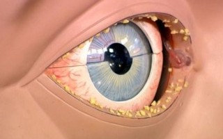 Кандидоз глаз и век