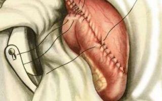 Удаление желудка при раке