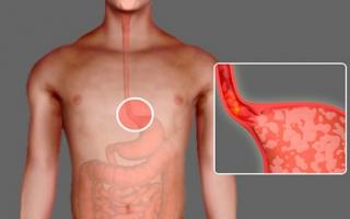Кандидоз пищевода лечение и симптомы
