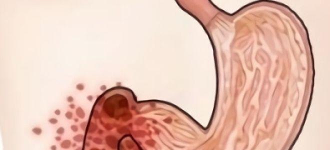 Эрозия луковицы двенадцатиперстной кишки