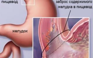 Рефлюкс эзофагит симптомы и лечение народными средствами