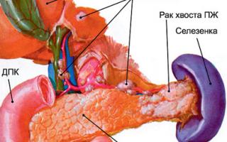 Лечение рака поджелудочной железы