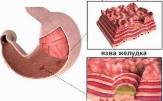 При эрозии желудка диета и питание