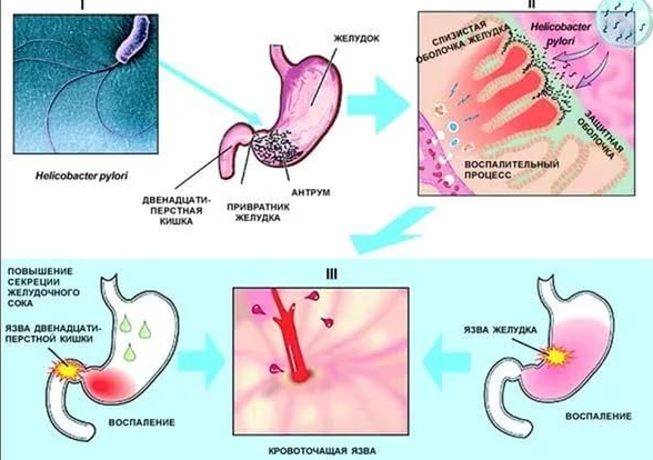 Причинные факторы желудка