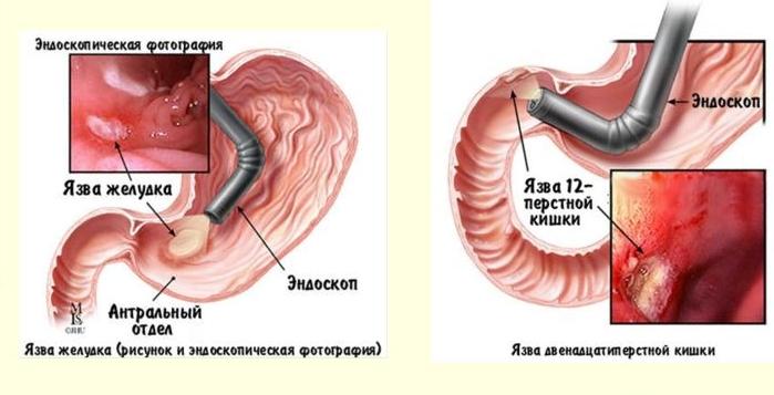 Симптомы желудка