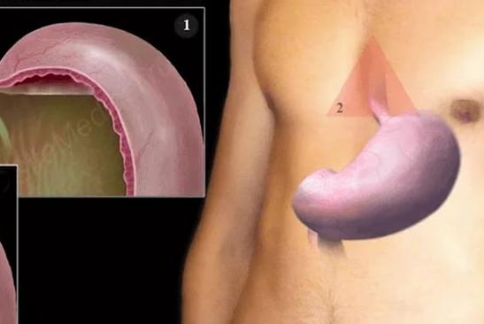 Причины лечения желудка
