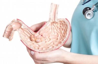 Терапия и профилактика желудка