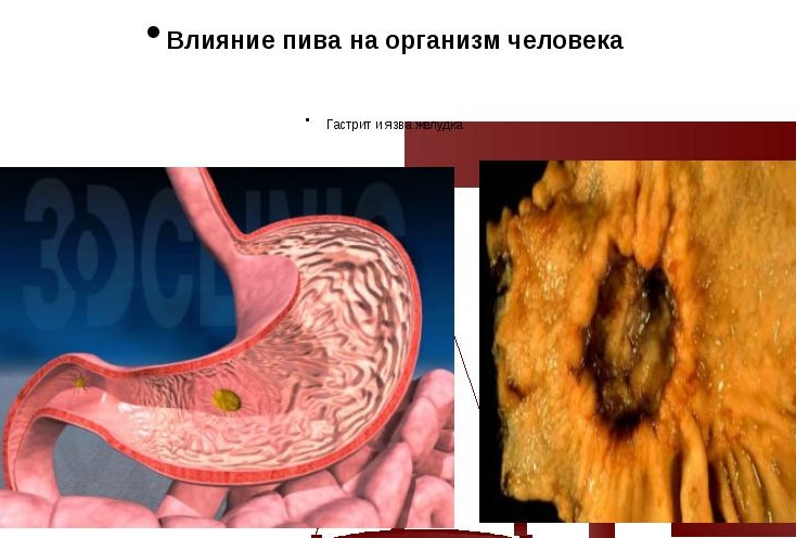 Типичные симптомы болезни желудка после алкоголя