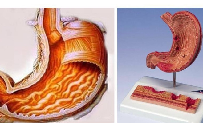 лекарство от боли в желудке