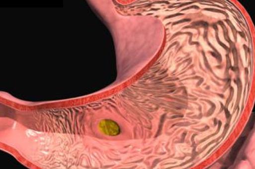Из за чего может болеть желудок