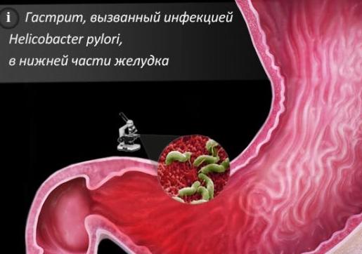 Поверхностный хронический гастрит