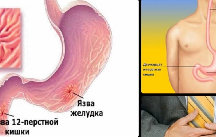 Язва желудка симптомы