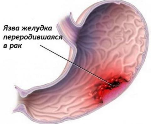 Лечится ли рак желудка