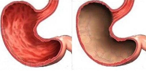 Субатрофический антральный хронический гастрит