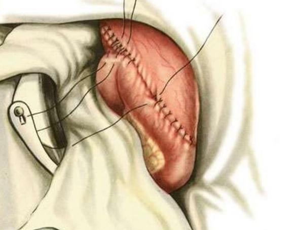 Удаление и резекция желудка