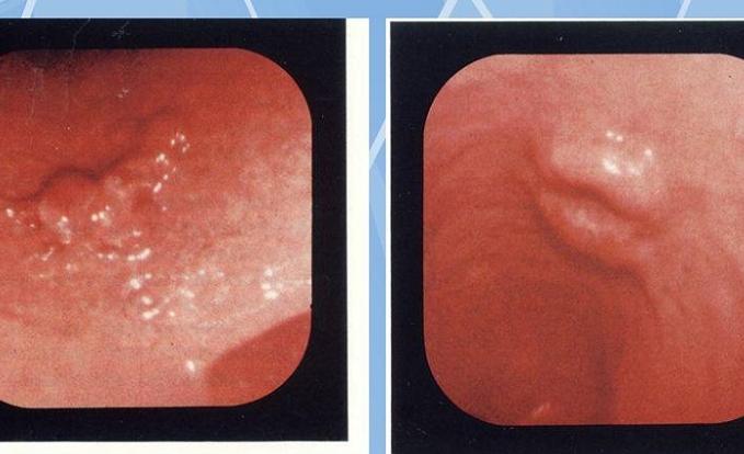 Симптомы рака желудка на ранних стадиях, как определить рак