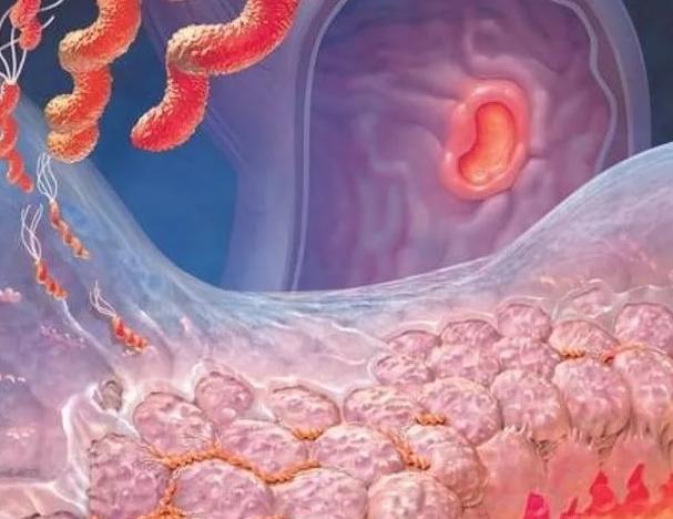 Атрофический гастрит симптомы и лечение у женщин и мужчин