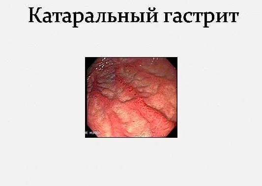 Катаральный гастрит симптомы и лечение