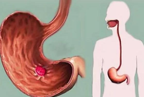 Температура при язве желудка и гастрите