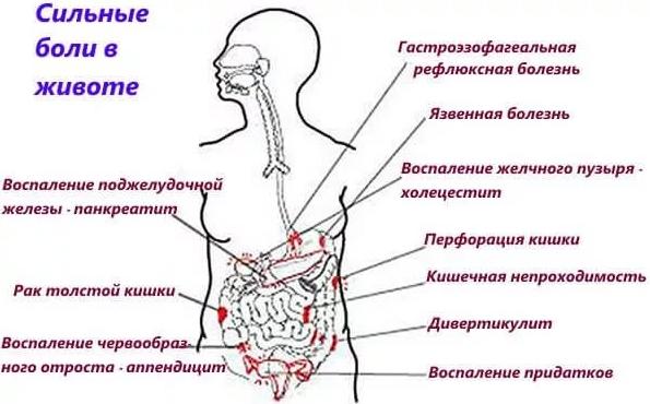 Что делать когда болит кишечник внизу живота