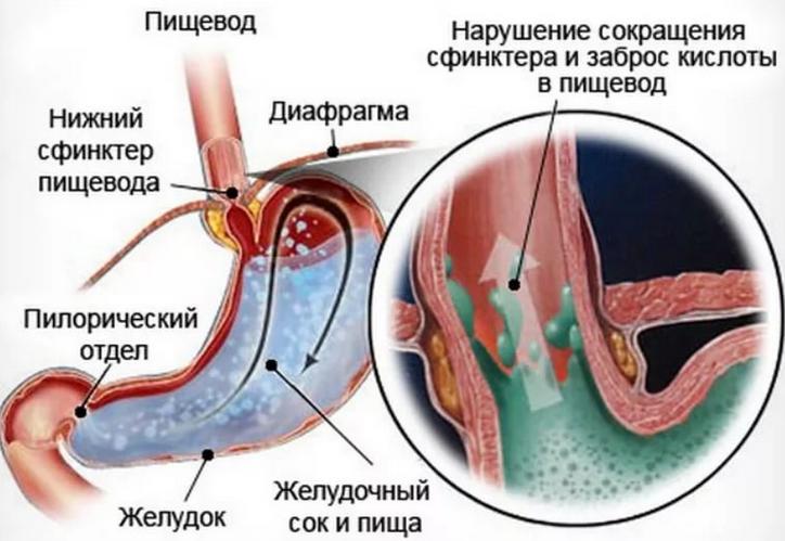 геморрой лечение живот болит