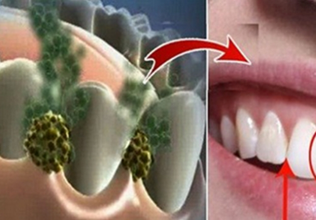 устранение запаха изо рта перекисью водорода отзывы