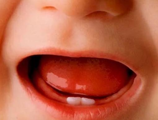 Понос при прорезывании зубов у детей причины